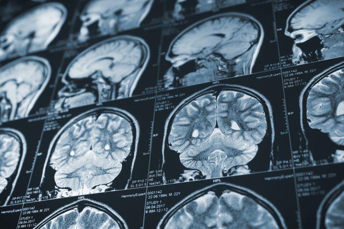 Sports Player Brain Injury