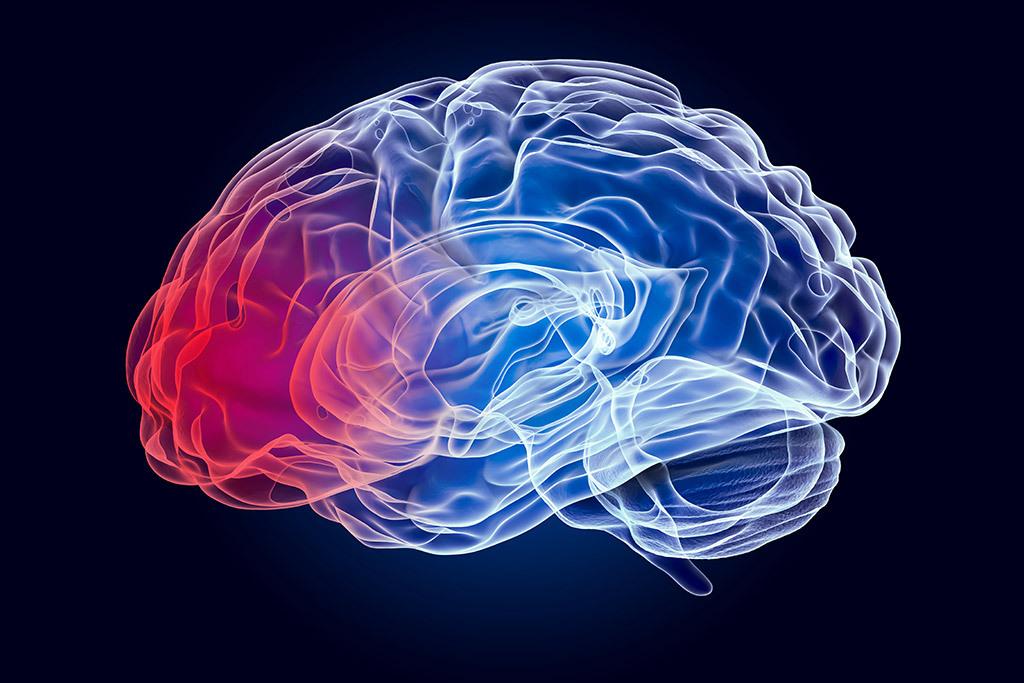 Head Brain Injuries