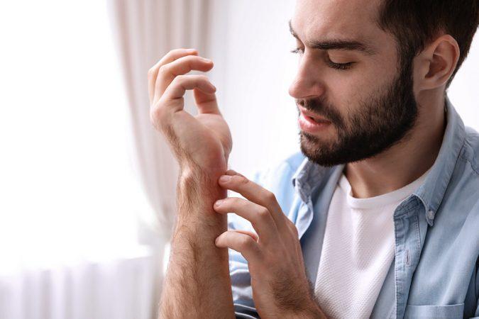 EczemaAwareness
