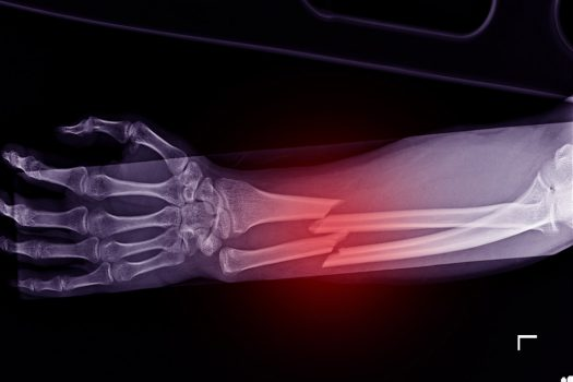 What Should I Do if a Hospital Missed my Fracture? Manchester